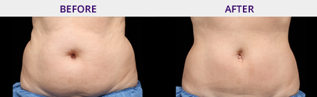 Before and After Picture Coolsculpting